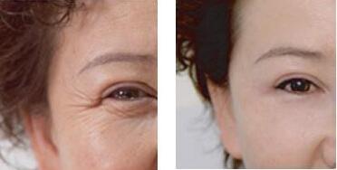 光子嫩肤祛斑后防晒要做好