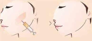 颊脂垫祛除后多久才能消肿