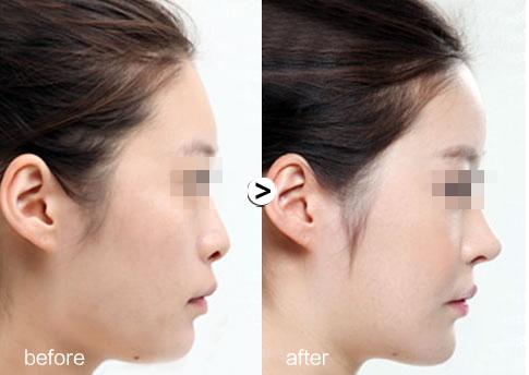 昆明喻青假体隆鼻的效果长久吗