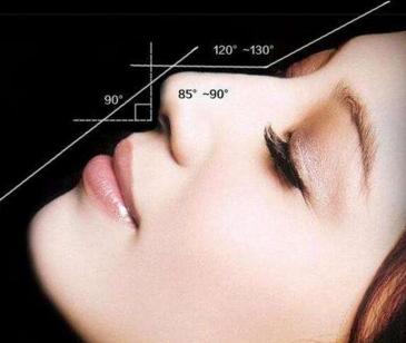 昆明维多利亚做歪鼻子修复的过程