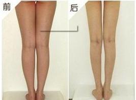 汕头名流瘦腿哪种方法最好
