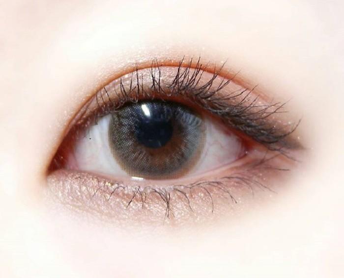内切去眼袋手术的详细过程