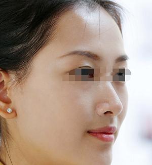 西安丽樽彩光嫩肤美容会伤害肌肤吗