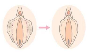 深圳可丽雅做小阴唇缩小术的切口在哪