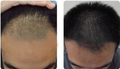 做自体毛发移植术安全吗