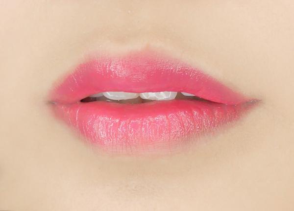 重唇整形成功标准是什么