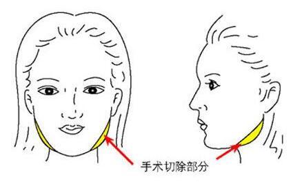 金华东阳天鹅湖修改脸型手术怎么做