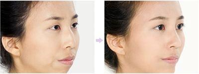 杭州美立妍驼峰鼻整形的效果怎么样