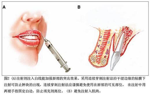 丰唇的几种方法介绍