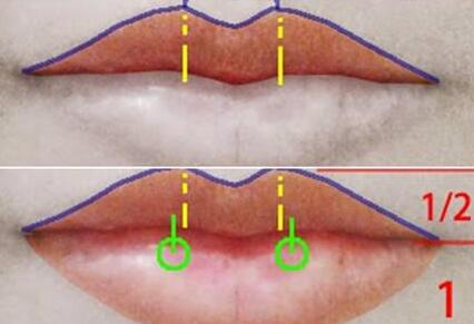 厚唇修薄的手术方法