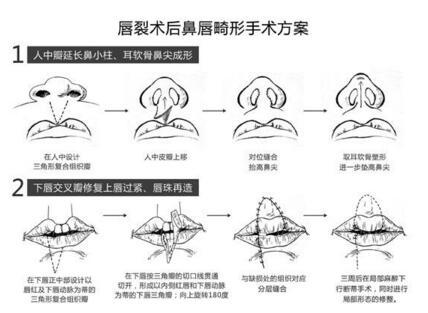 唇裂修复的三大类型
