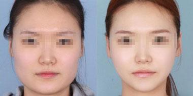 肉毒素瘦脸的副作用有哪些