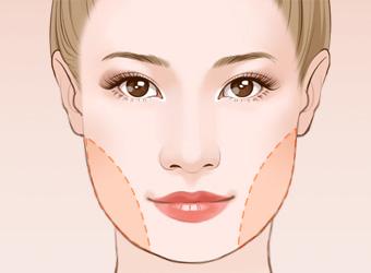 去咬肌瘦脸手术安全吗