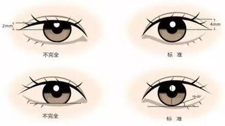 宁波大学医学院肿眼泡能做哪种双眼皮