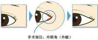 宁波海曙美莱外开眼角手术的全过程