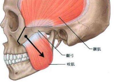 下颌角肥大矫正术的效果