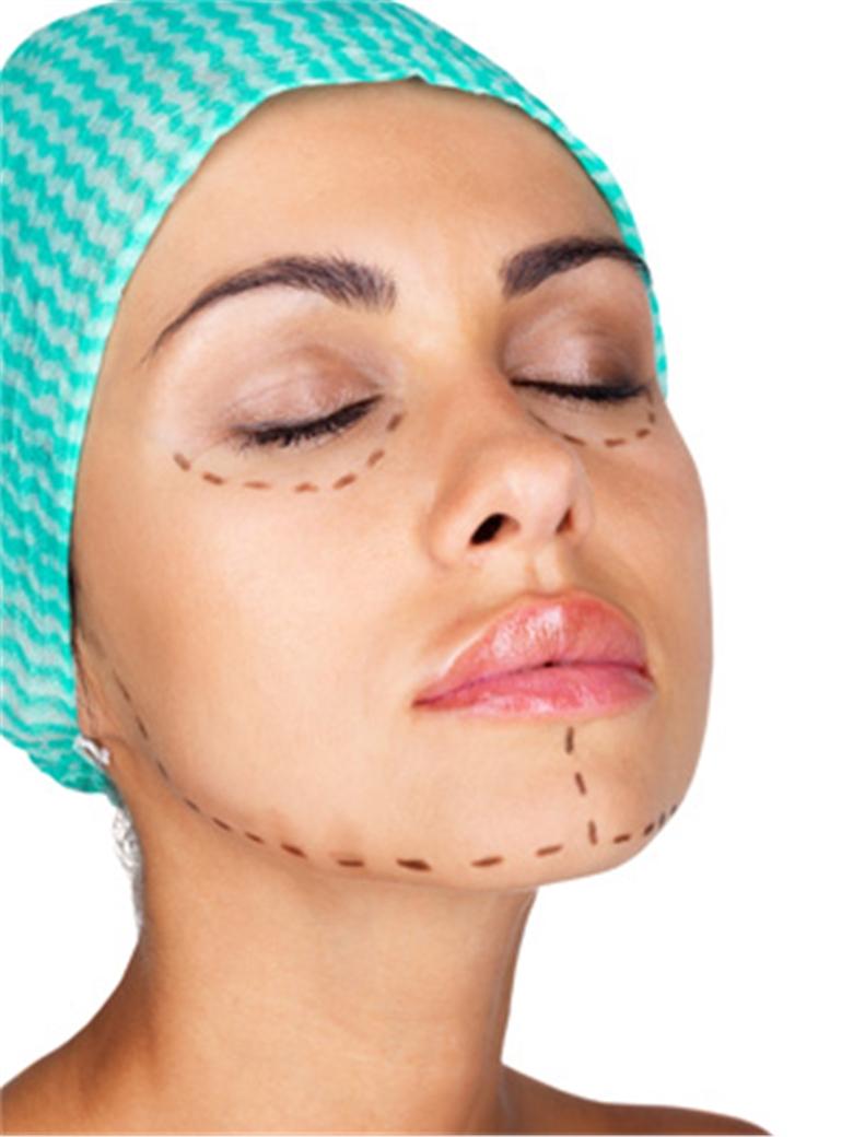 去咬肌瘦脸手术为什么好