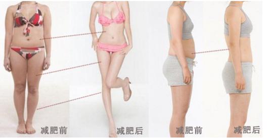 小腿做吸脂减肥做借口的位置在哪