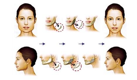 沈阳伊美尔磨颧骨的手术流程