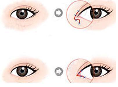南京美梯开眼角术前和术后的注意事项