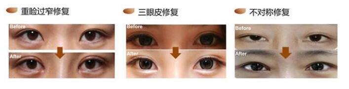 南通汇美双眼皮修复的术后护理