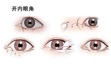 南京美度开内眼角术前和术后注意事项?