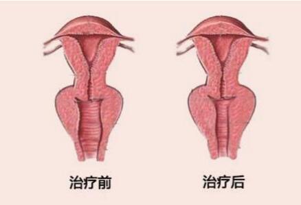 东莞南华妇科医院阴道紧缩术的效果