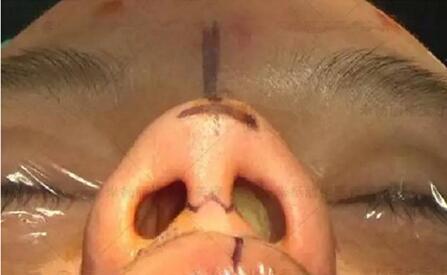 膨体隆鼻手术的优点和缺点