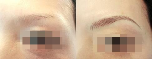 眉毛种植案例:生活更美好