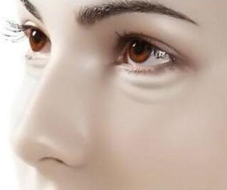 新疆艾美激光去黑眼圈的恢复时间