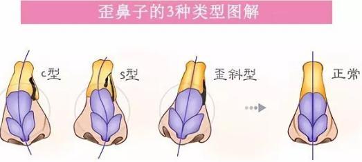 苏州美立方歪鼻子矫正手术怎么做
