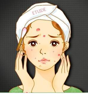 激光美容祛斑对皮肤有伤害吗