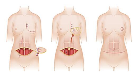 深圳晨曦乳房再造手术方法有哪些