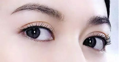 汕头晴颜埋线双眼皮手术后护理有哪些