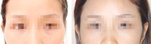 丰太阳穴整形案例:面部更协调