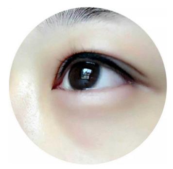 有皮肤病的人能不能做开眼角