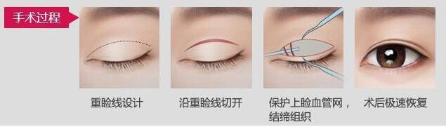 上海新形象切开双眼皮修复手术的恢复过程