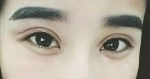 上海医颜埋线双眼皮手术的过程