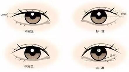 上海盈美切开法双眼皮手术优势