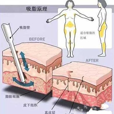 背部吸脂的过程中有没有痛感