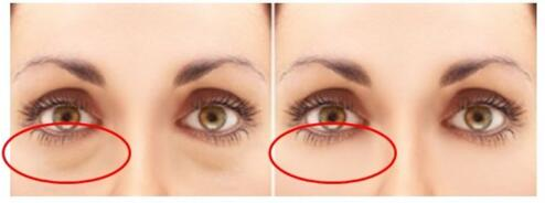 溶脂针去眼袋微创不留疤