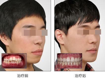 牙齿矫正案例:颜值爆表