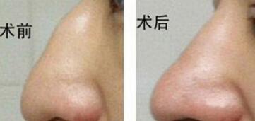 太原新世纪驼峰鼻矫正术的两种方法