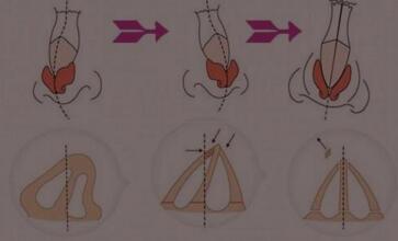 重庆花都歪鼻整形术的方法有哪些