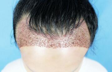 """什么是植发手术 告别""""地中海"""""""