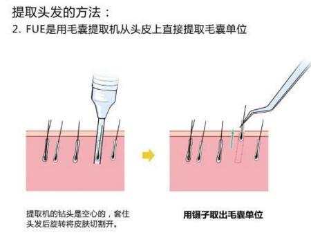 西安雍禾哪些人能做种阴毛手术
