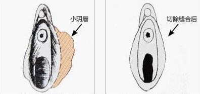 小阴唇肥大缩小案例:摩擦兴奋点很高