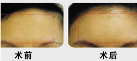 黄石华中福康额部填充的手术方法有哪些