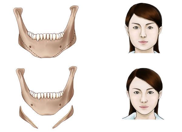 深圳汇仁下颌角整形术的效果怎么样