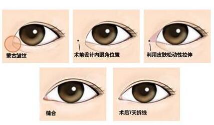 武汉丽星韩式隐形开眼角手术费用有多高
